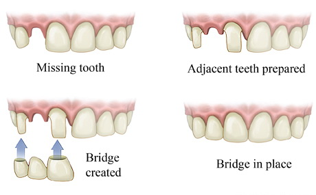 Dental Bridge_1