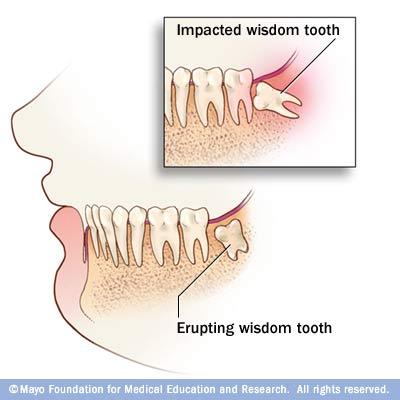 Wisdom Teeth Partial Eruption Pain